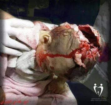 Meurtre de bebe palestiniens